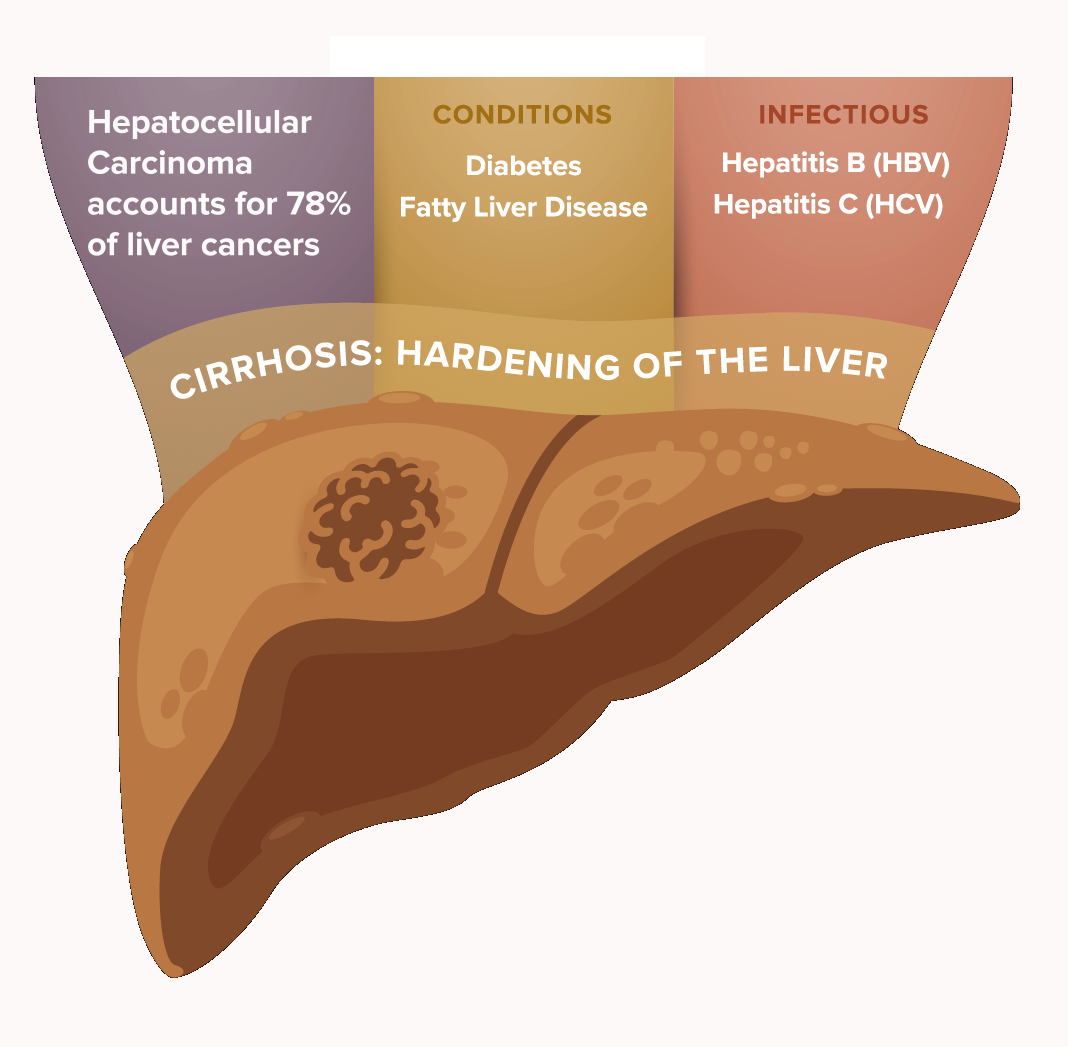 Liver Cancer Infographic